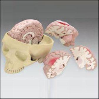 Diseased_brain_in_skull